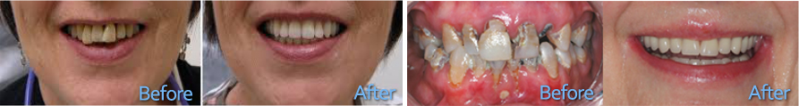 before-after-dentures - Dentures Brisbane