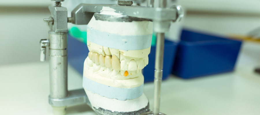 fake teeth in lab waiting to get dry