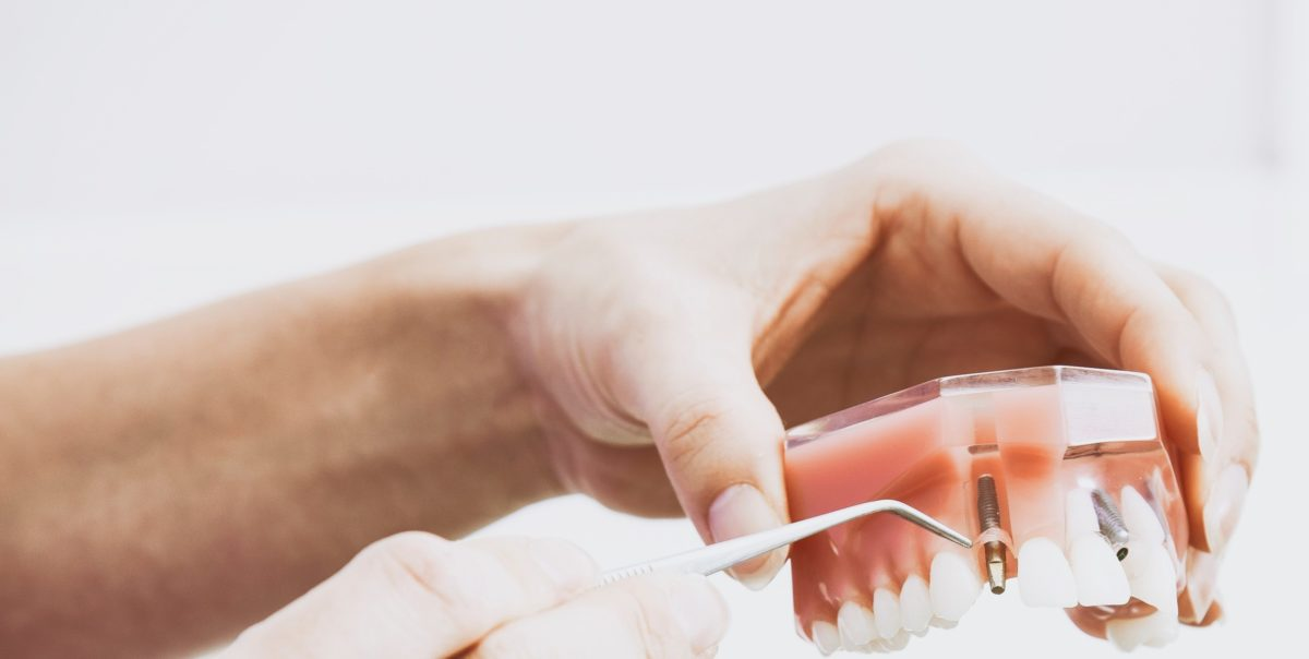 A broken set of dentures being fixed by female hands