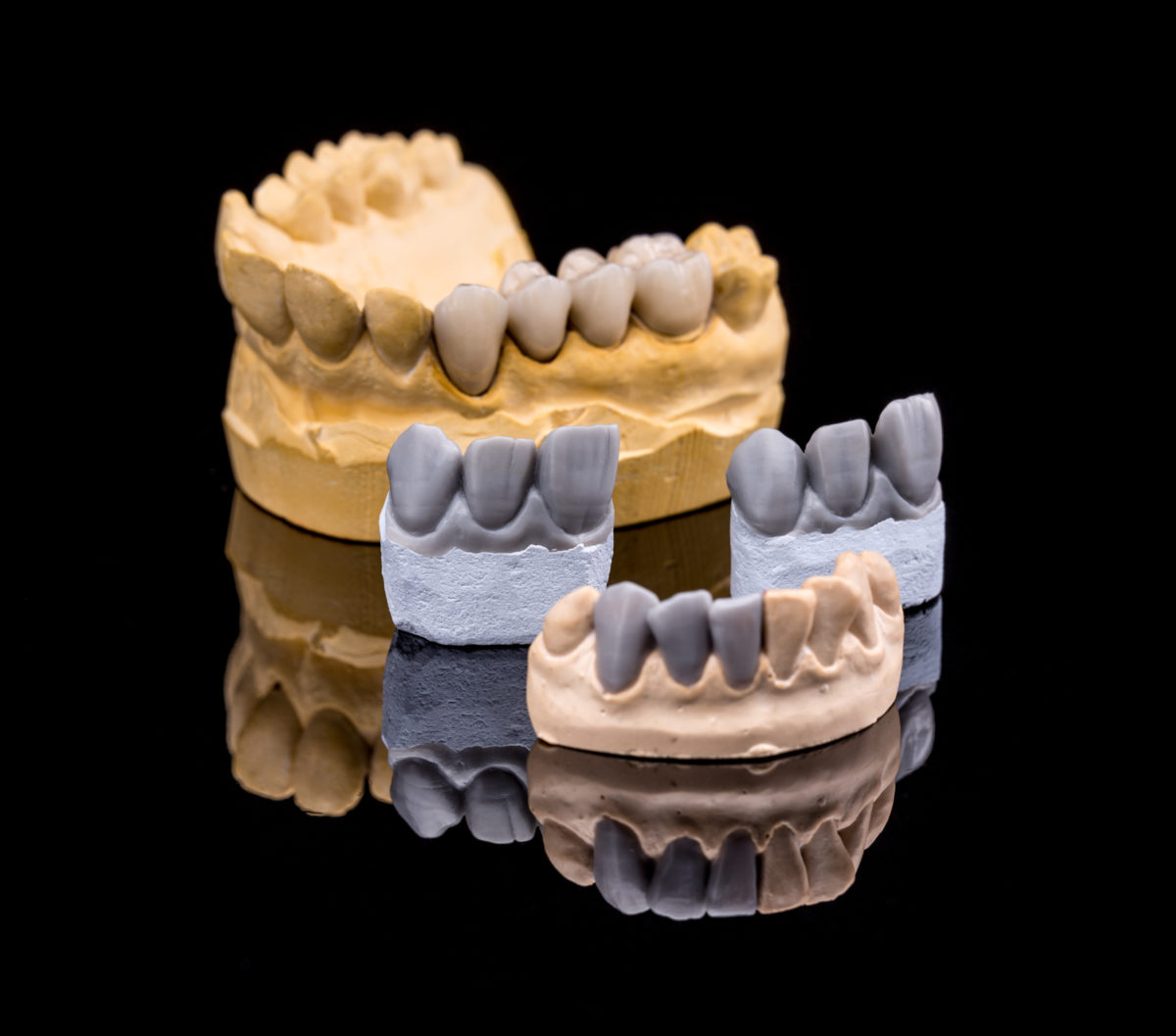 An example of different types of partial dentures