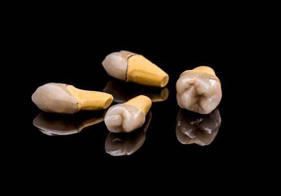 Can You Get a Partial Denture for One Tooth? Blog featured image showing single prosthetic teeth.