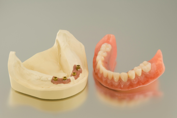 Best Dentures for Lower Teeth